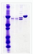 CBB染色の原理