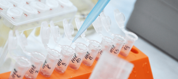ヘモグロビン検査の市場調査レポート:ヘモグロビンテスト市場:世界の業界動向、シェア、規模、成長、機会、予測(2021~2026年)